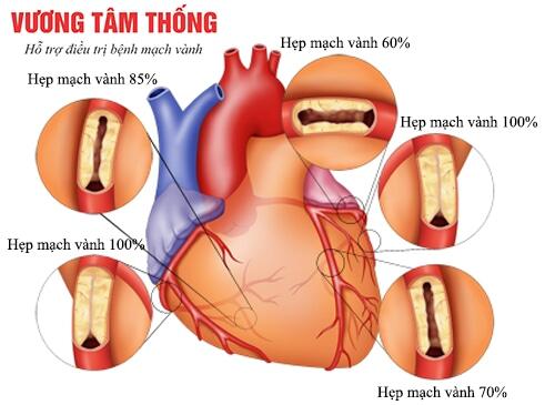 Xơ vữa mạch vành làm chít hẹp lòng mạch theo nhiều mức độ khác nhau